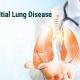 بررسی پاتولوژی های شایع ریه در سی تی اسکن