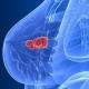 10 تصور اشتباه در مورد سرطان پستان