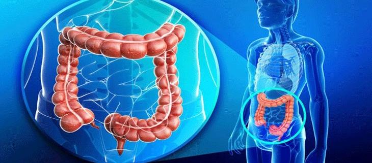 بیماری های کولون، رکتوم و مقعد و جراحی آنها