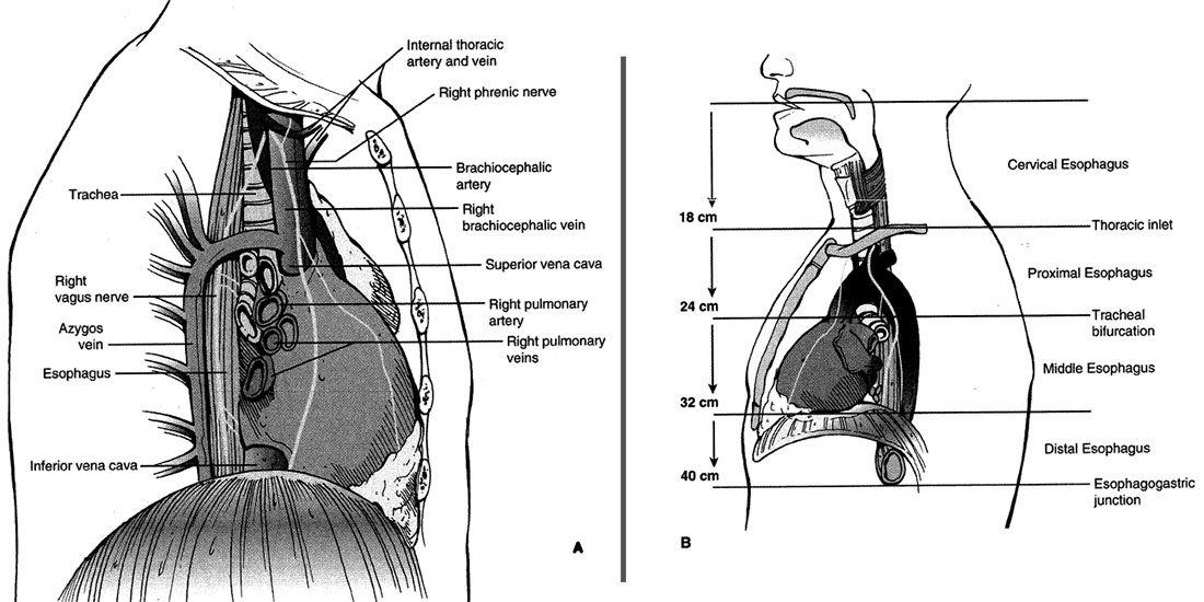 آناتومی مری از دید یک جراح